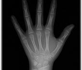 Punho e Mão ou Carpal Digital
