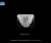 Radiogradia Oclusal Digital