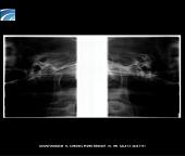 Radiografia Panorâmica Especial para ATM Digital