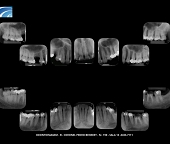 Radiografia Periapical Digital