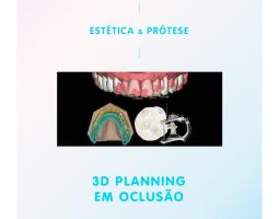 Planejamento Digital do Sorriso - 3D