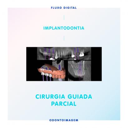 Cirurgia Guiada em Implantodontia