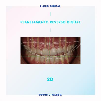 Planejamento Reverso Digital - 2D