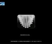 Radiogradia Oclusal Digital