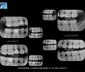 Radiografia Interproximal Digital
