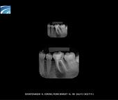 Radiografia Periapical Digital