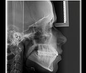 Telerradiografia Lateral Digital