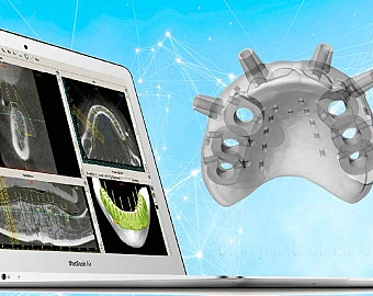 Cirurgia Guiada para Implantes Dentários